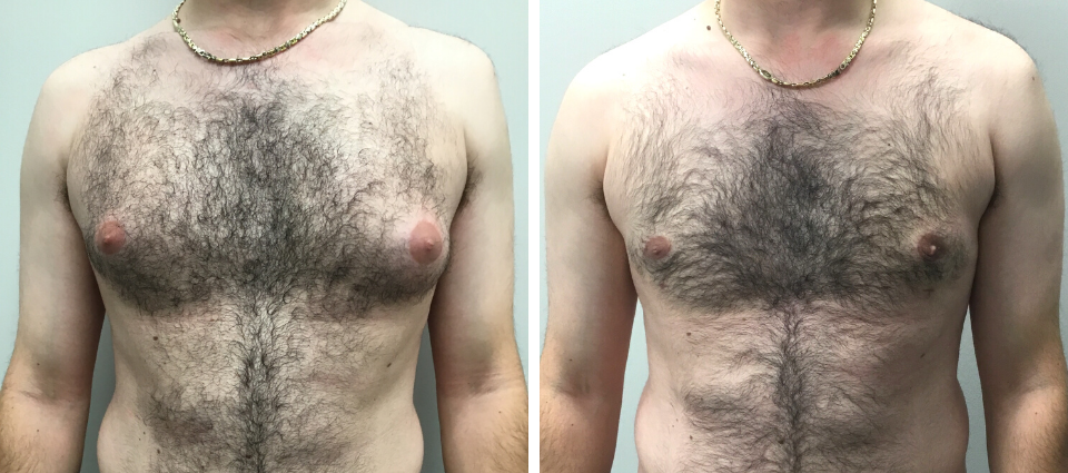 Male Breast Reduction Before and After - Brampton Mississauga, Toronto - Brampton Cosmetic Surgery Center & Medical Spa