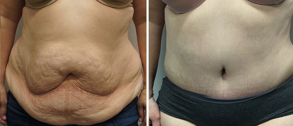Tummy Tuck Before and After - Brampton Mississauga, Toronto - Brampton Cosmetic Surgery Center & Medical Spa