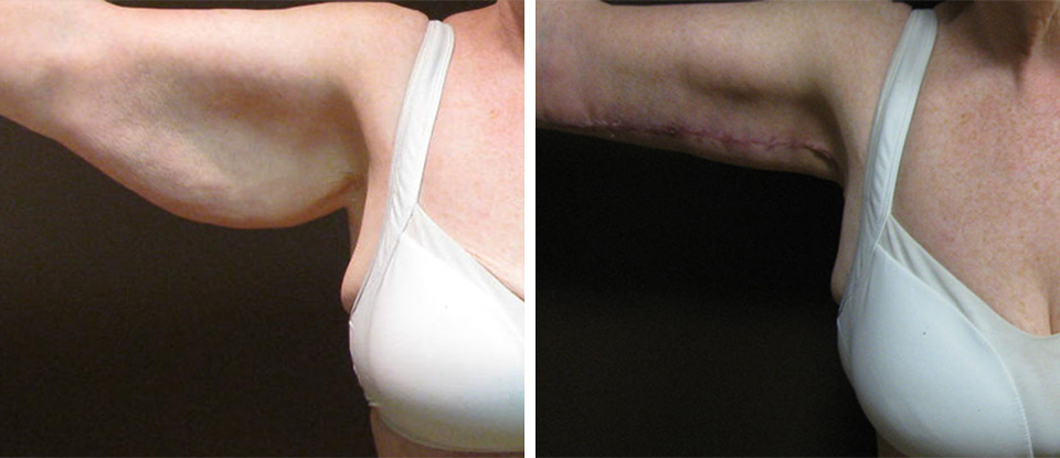Arm Lift Before and After - Brampton Mississauga, Toronto - Brampton Cosmetic Surgery Center & Medical Spa