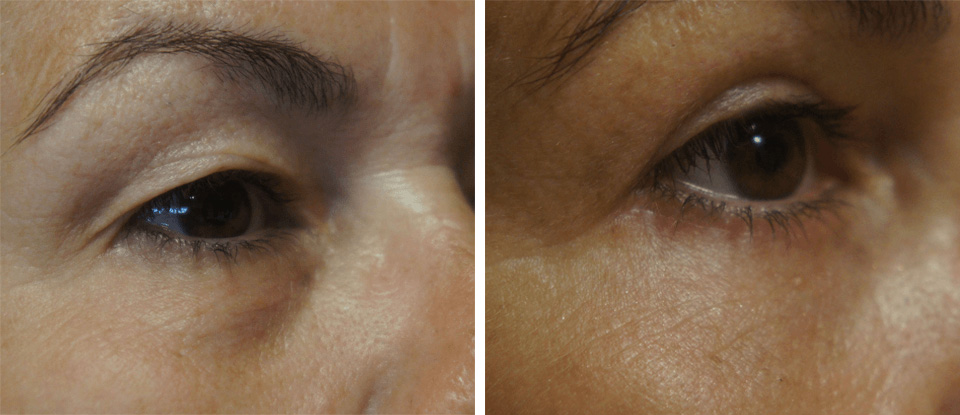 Eyelid Lift Before and After - Brampton Mississauga, Toronto - Brampton Cosmetic Surgery Center & Medical Spa