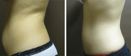 Liposuction Before and After - Brampton Mississauga, Toronto - Brampton Cosmetic Surgery Center & Medical Spa