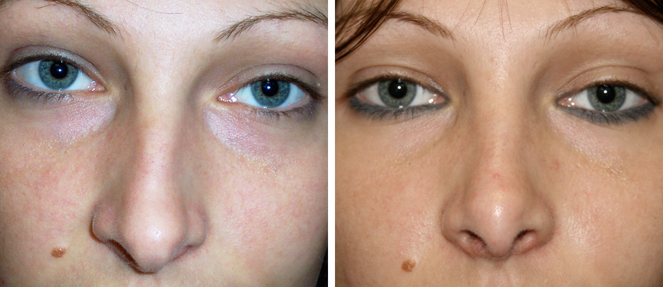 Nose Reshaping Before and After - Brampton Mississauga, Toronto - Brampton Cosmetic Surgery Center & Medical Spa